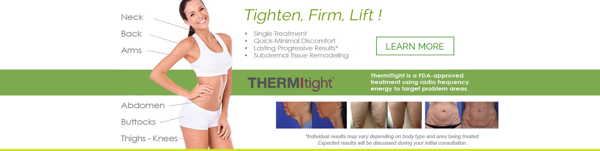 Clinton Township Laser Skin Tightening