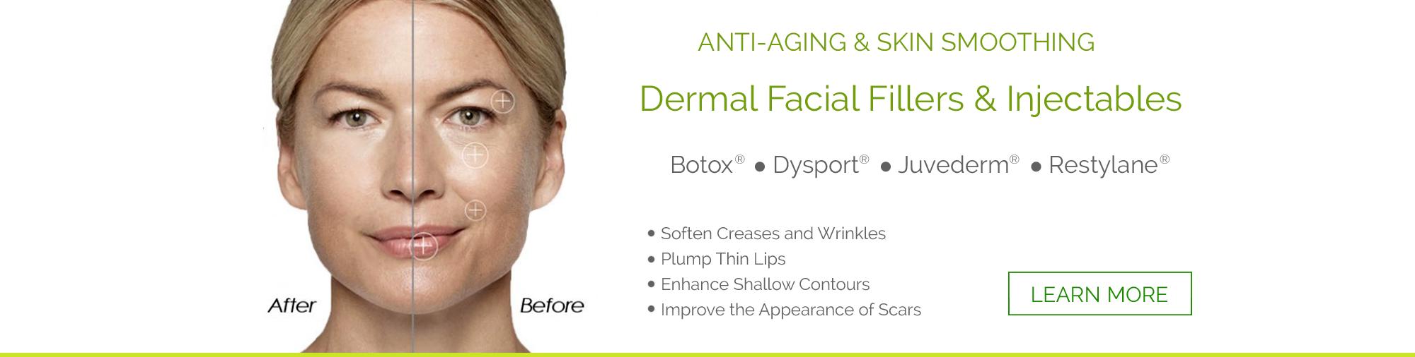 Clinton Township Botox & Facial Fillers
